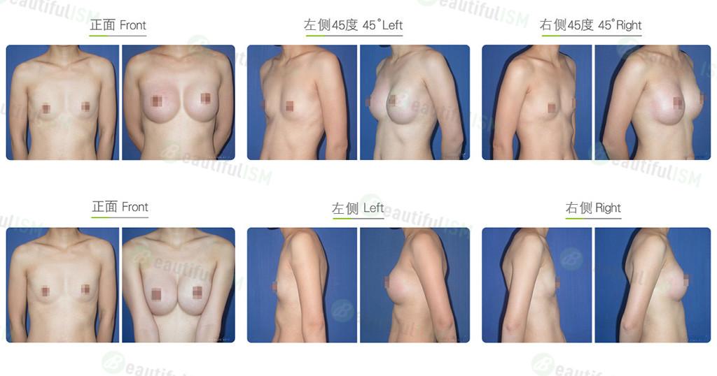 乳房下垂整形-隆胸效果图,案例前后对比照片