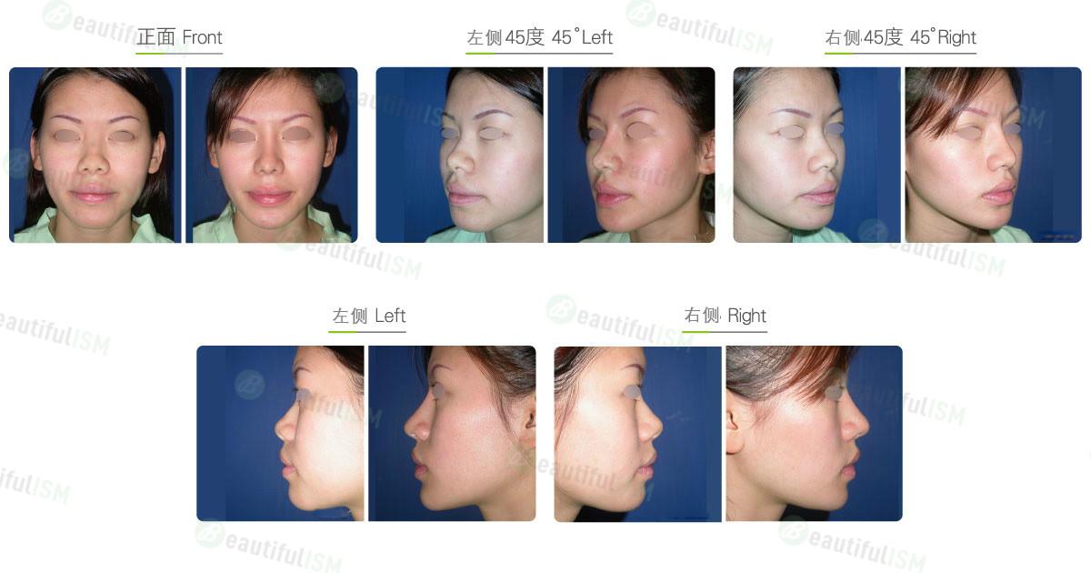 垫下巴+硅胶假体植入(女)效果图,案例前后对比照片