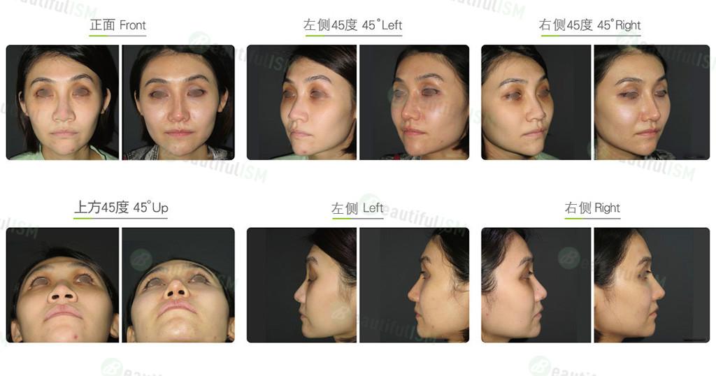 韩式隆鼻+鼻骨缩减+鼻翼缩小(女)效果图,案例前后对比照片