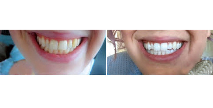 牙齿美白-冷光美白效果图,案例前后对比照片