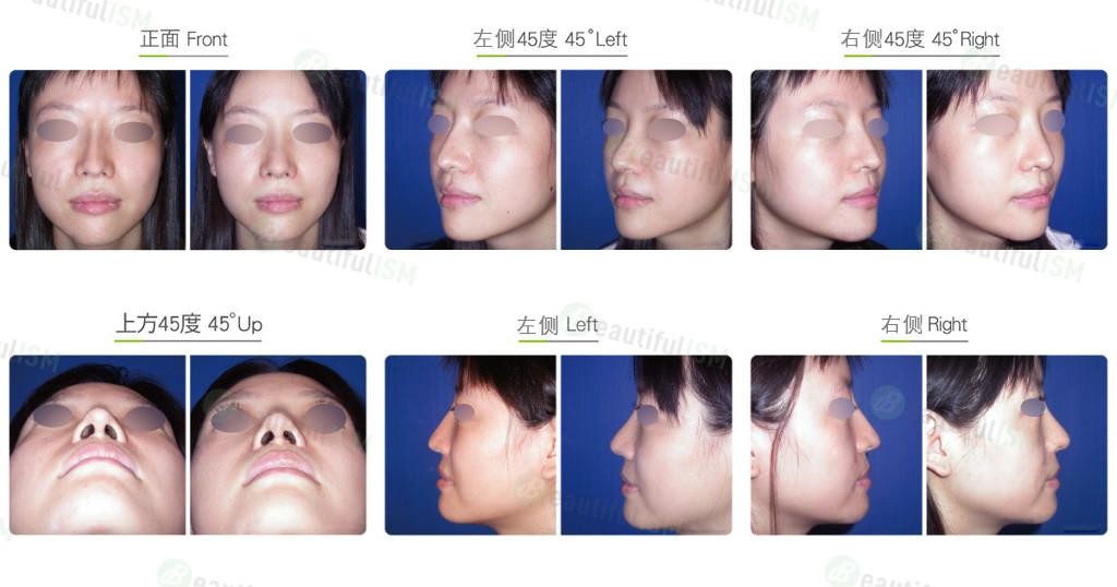 韩式隆鼻修复+补鼻肉(女)效果图,案例前后对比照片