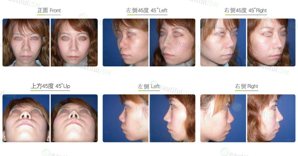 蒜头鼻整形+韩式隆鼻(女)效果图,案例前后对比照片