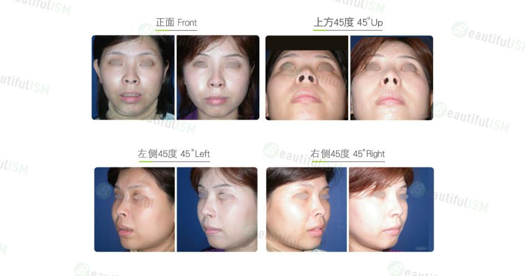 鼻孔外露整形(女)效果图,案例前后对比照片