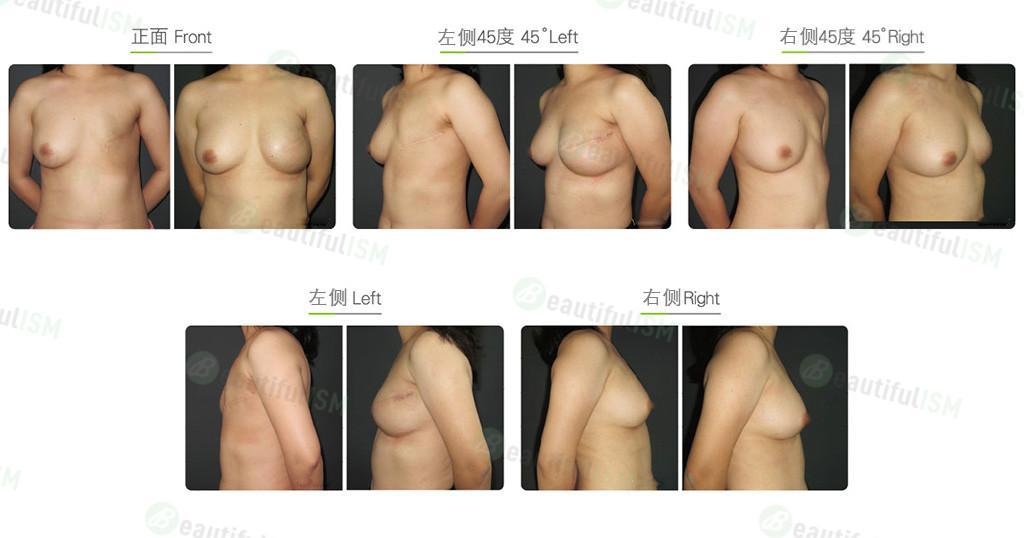乳房重建-第二阶段重建效果图,案例前后对比照片