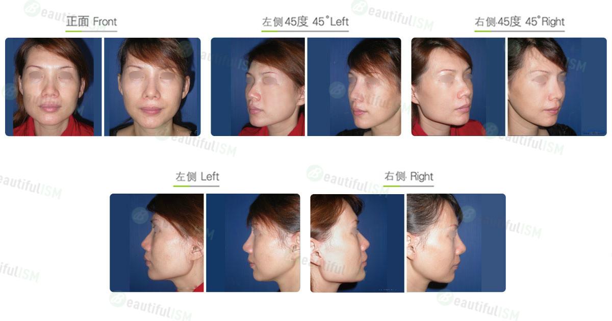 下颌骨整形-下颌骨角合并下颌骨体削骨(女)效果图,案例前后对比照片