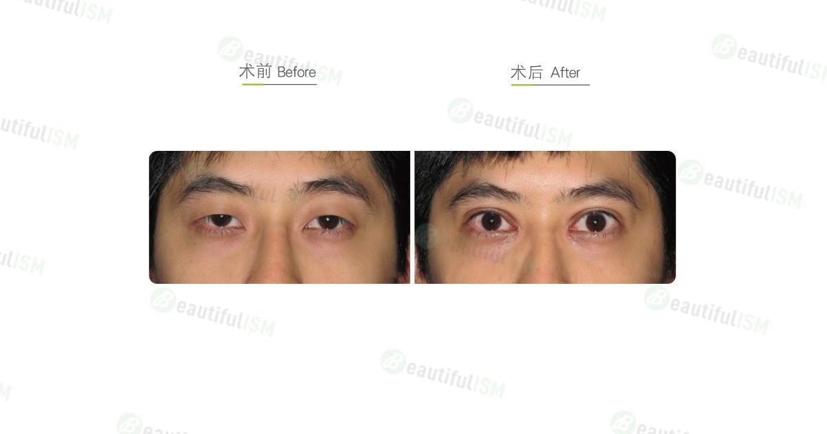 眼部综合整形(男)效果图,案例前后对比照片