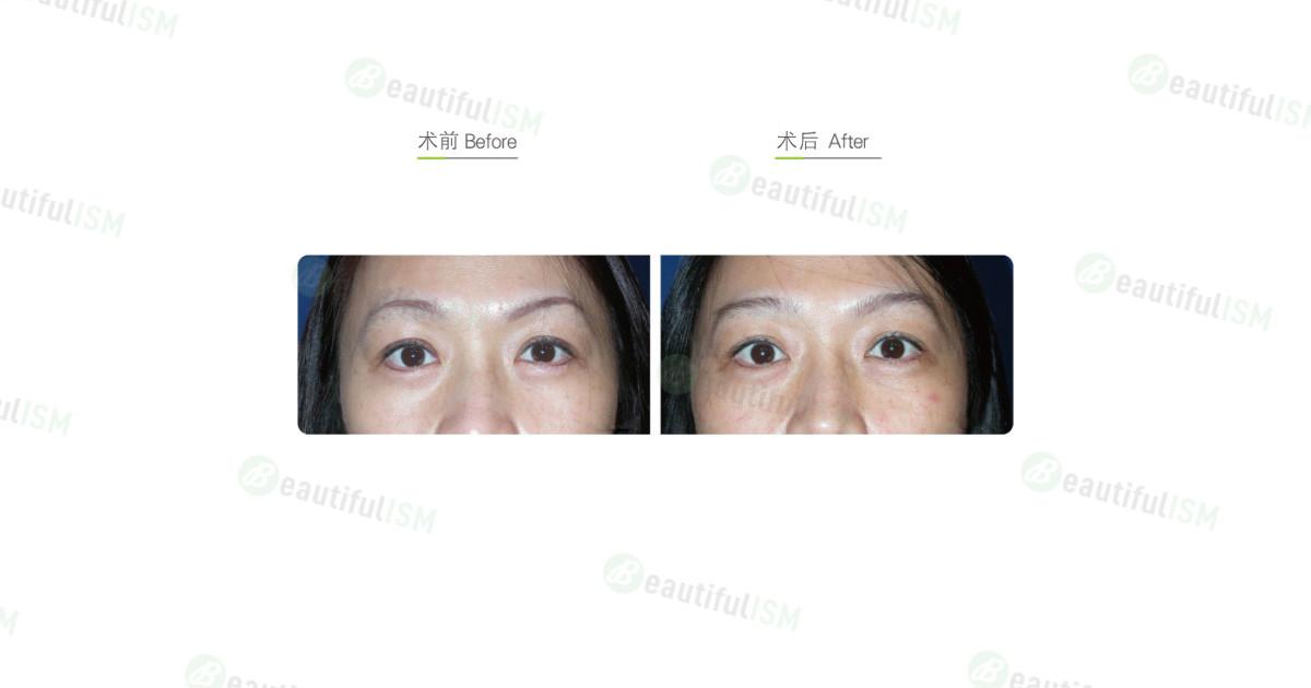 玻尿酸丰卧蚕(女)效果图,案例前后对比照片