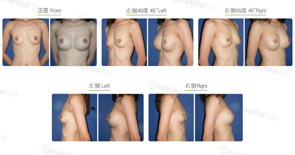 夹层式大小胸整形效果图,案例前后对比照片