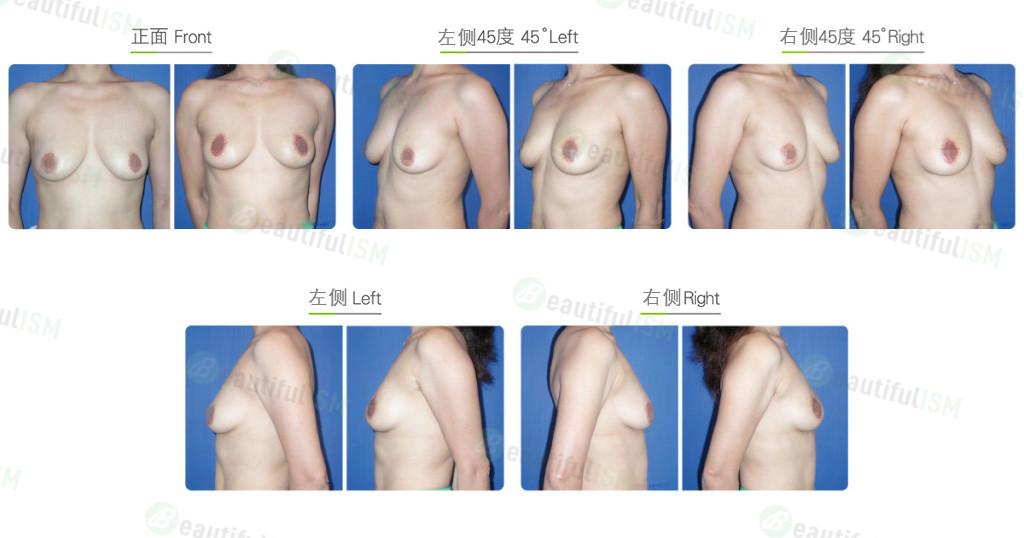 乳房下垂整形-提乳固定效果图,案例前后对比照片