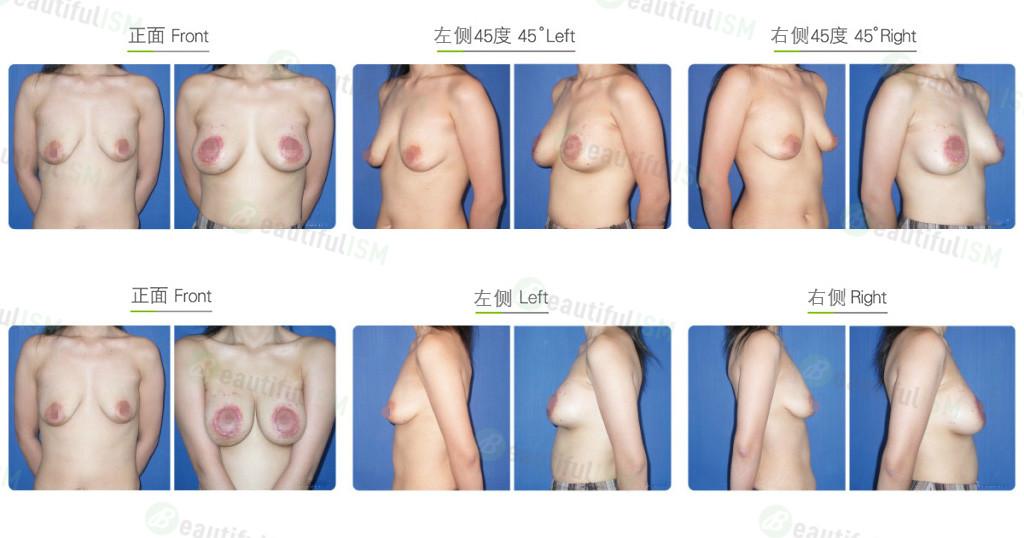 乳房下垂整形-提乳隆胸效果图,案例前后对比照片