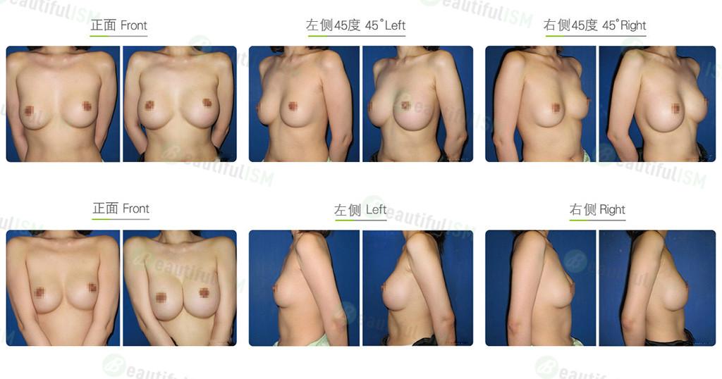 隆胸修复-荚膜切开效果图,案例前后对比照片