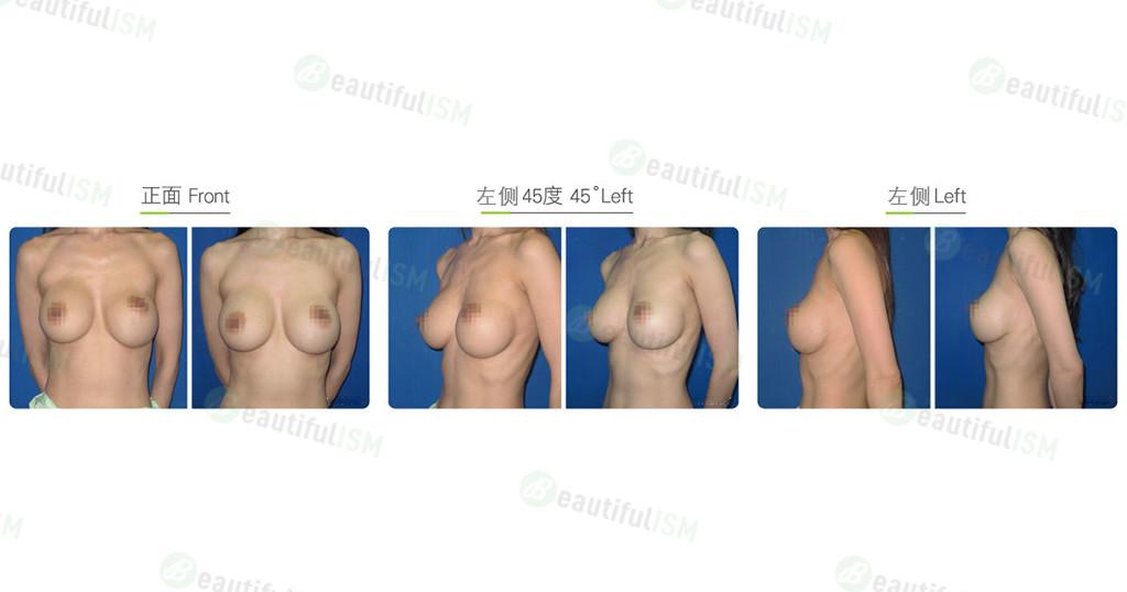 隆胸修复-空间缝合效果图,案例前后对比照片