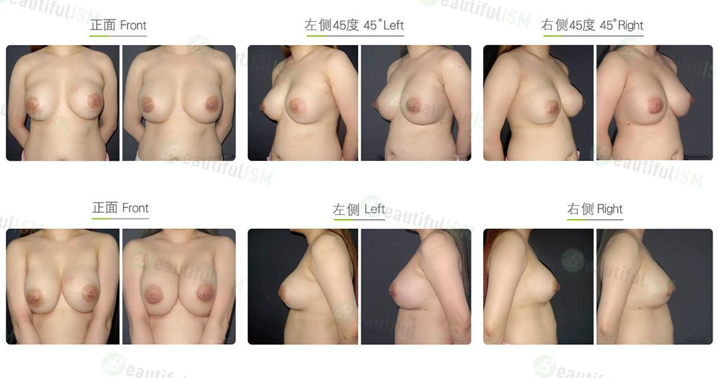 绒毛面义乳重做-圆形义乳效果图,案例前后对比照片
