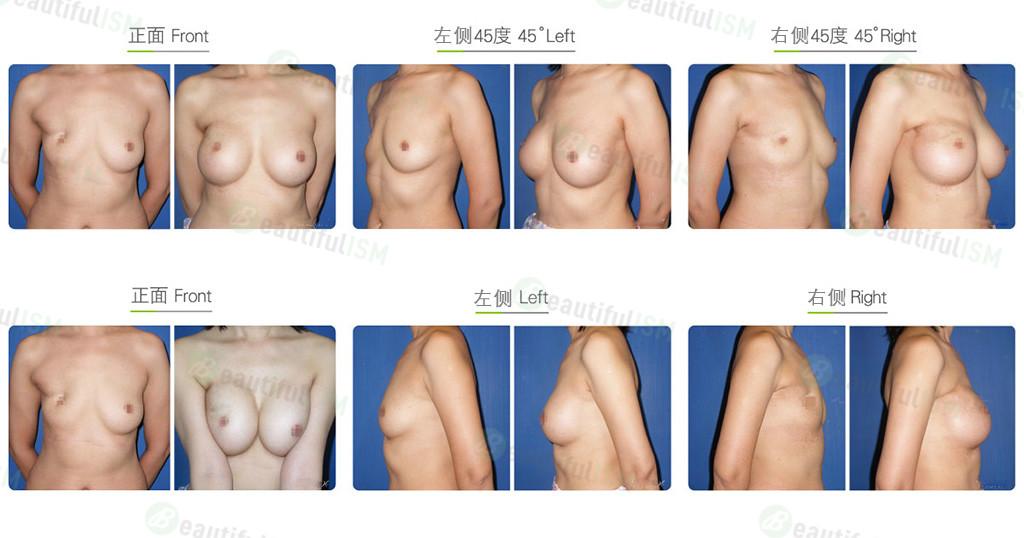 乳房重建-第一阶段重建效果图,案例前后对比照片
