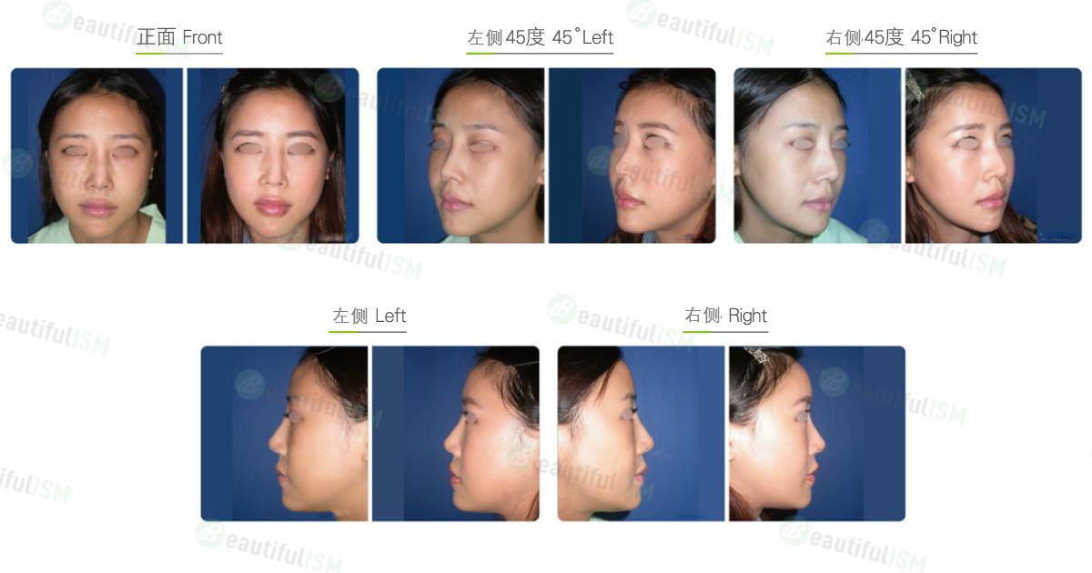 丰额头-假体额头片植入(女)效果图,案例前后对比照片