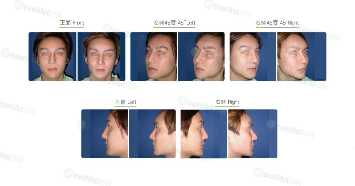 隆眉弓(男)效果图,案例前后对比照片