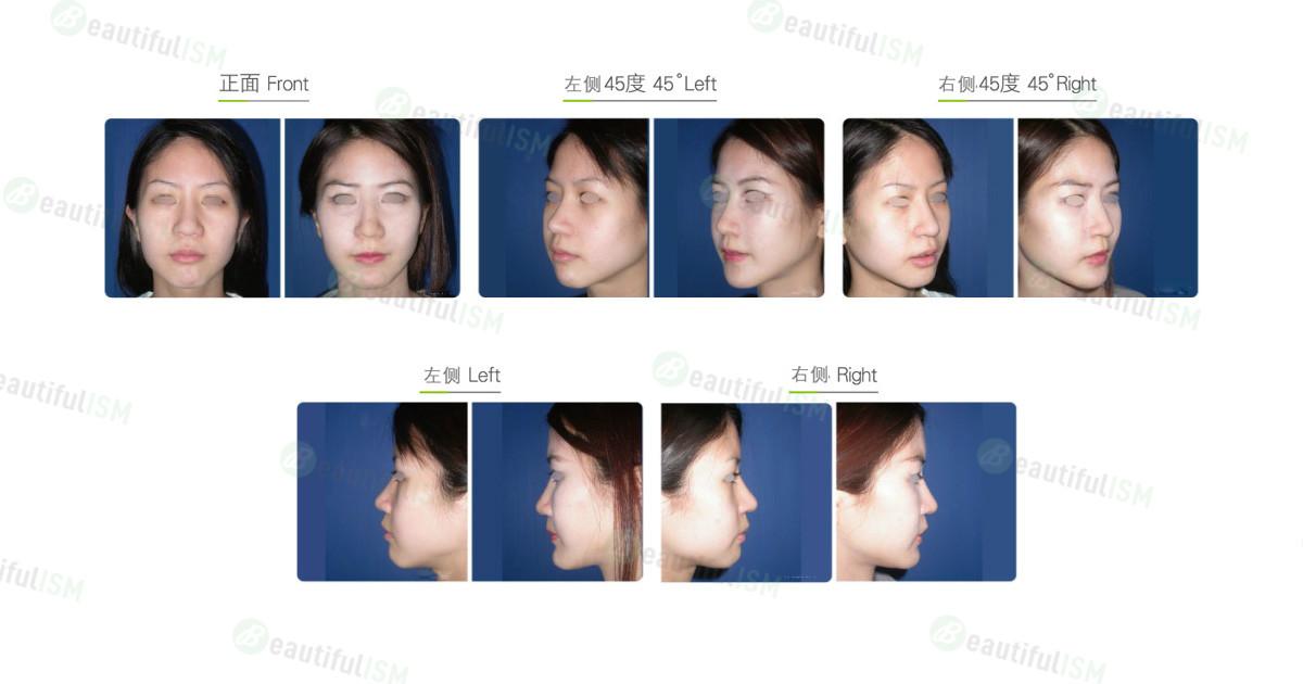 丰苹果肌-假体植入(女)效果图,案例前后对比照片