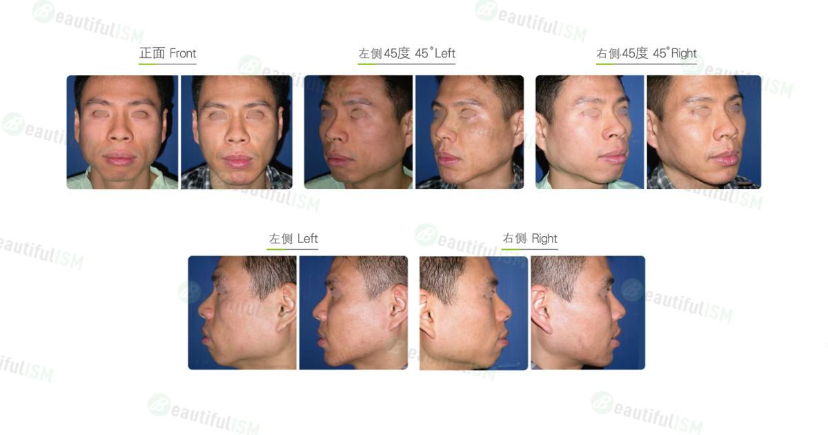 丰苹果肌-假体植入(男)效果图,案例前后对比照片