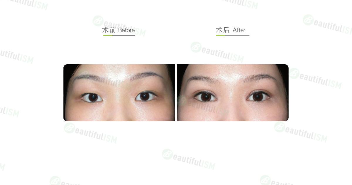 眼部综合整形(女)效果图,案例前后对比照片