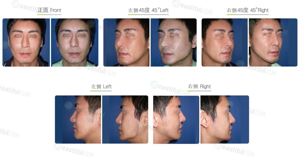 垫下颌骨-人工骨假体(男)效果图,案例前后对比照片