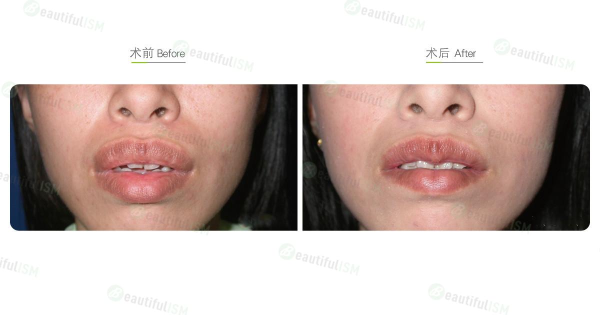 嘴唇整形-缩唇与修唇+上下唇(女)效果图,案例前后对比照片