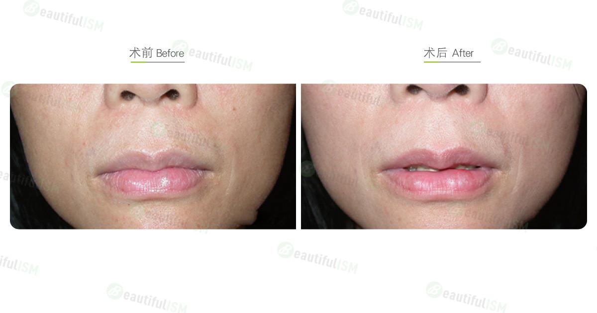 嘴唇整形-缩唇与修唇+上唇(女)效果图,案例前后对比照片