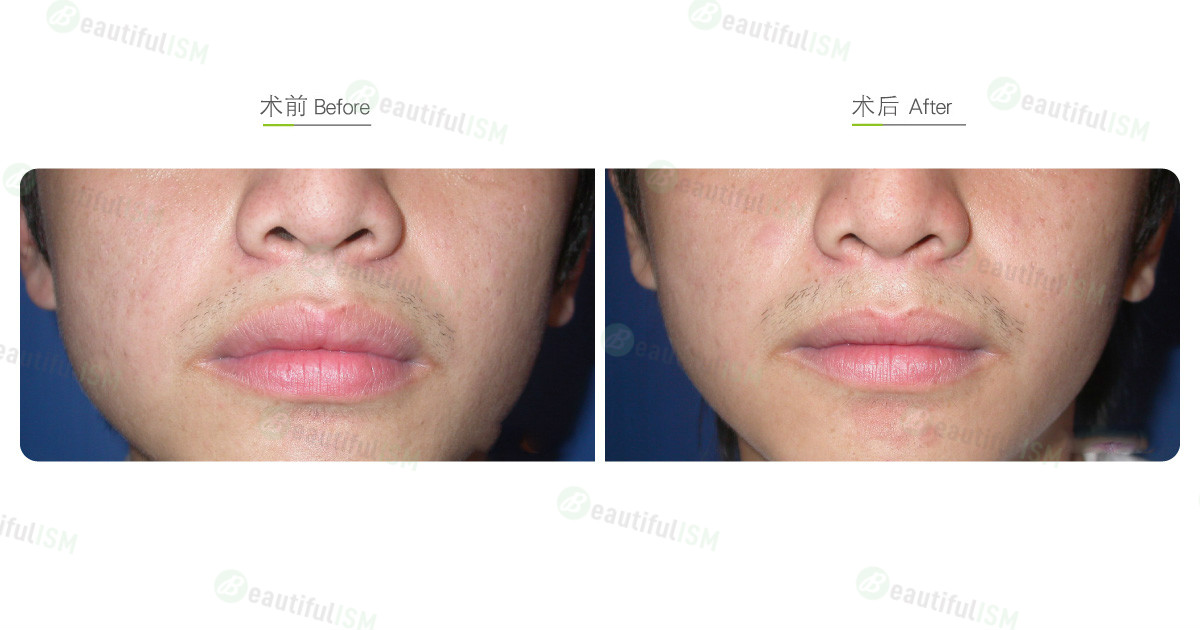 嘴唇整形-缩唇与修唇+上唇(男)效果图,案例前后对比照片