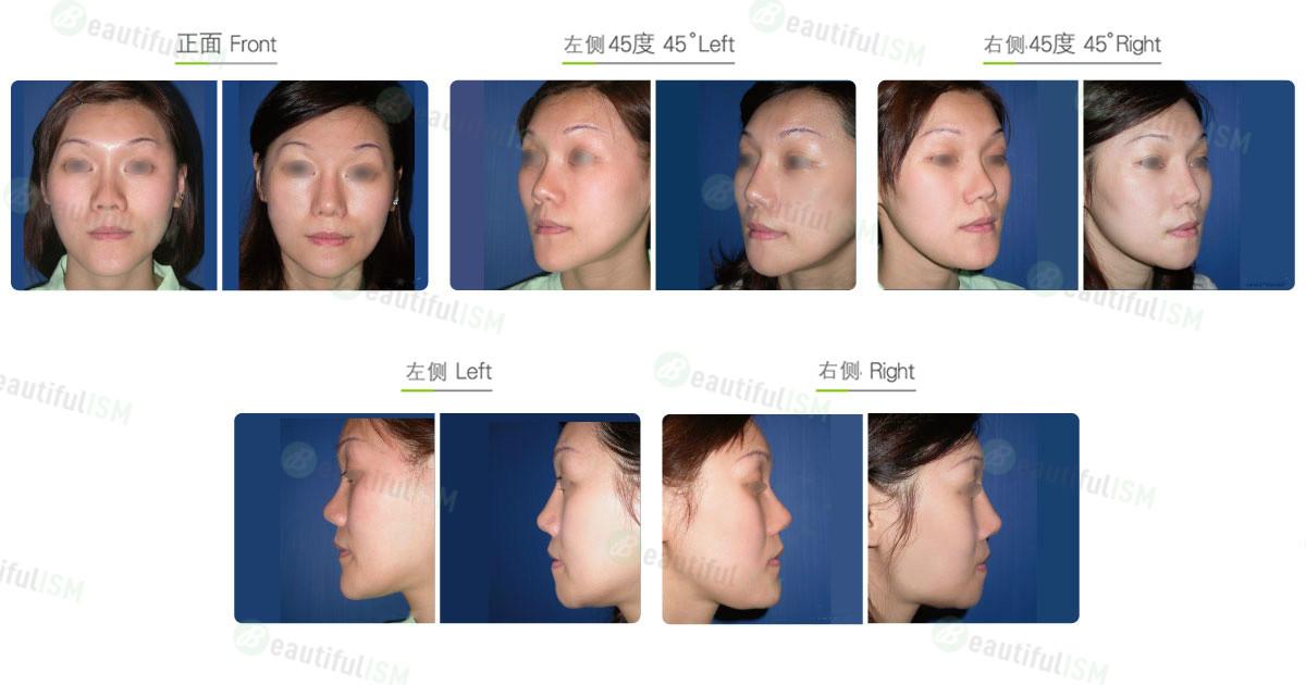 下巴整形-下巴截骨后移(女)效果图,案例前后对比照片