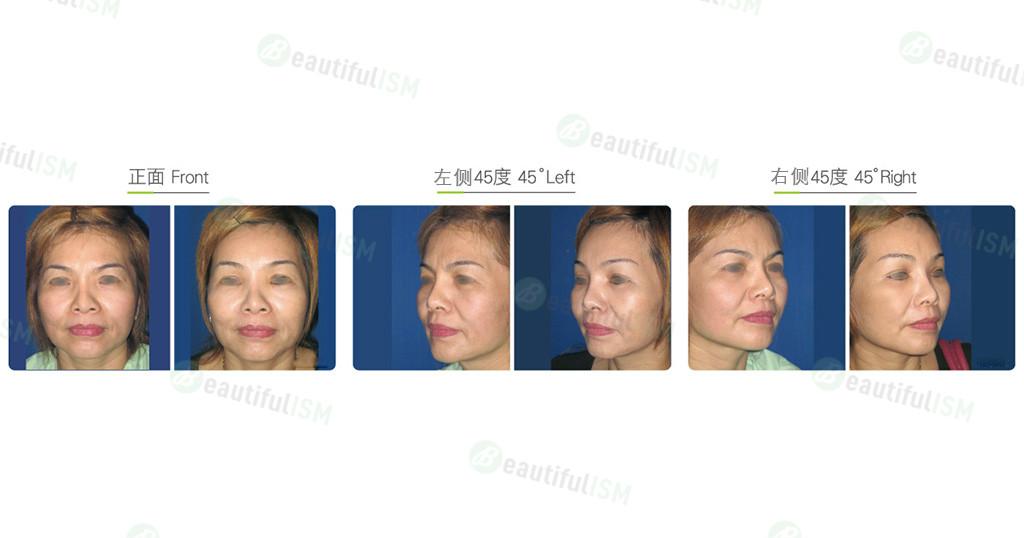内窥镜额头提拉+外切去眼袋(女)效果图,案例前后对比照片