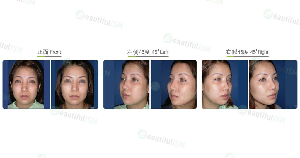 内窥镜中脸提拉(女)效果图,案例前后对比照片