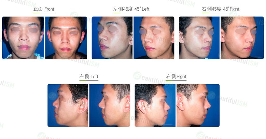 硅胶假体隆鼻(男)效果图,案例前后对比照片
