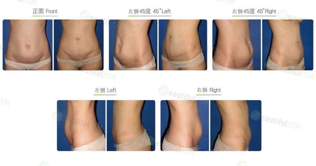 腹部拉皮-全腹拉皮+肚脐重整(女)效果图,案例前后对比照片