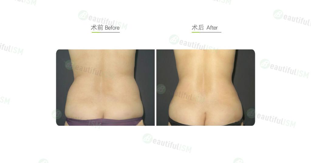腰腹吸脂-后腰(女)效果图,案例前后对比照片