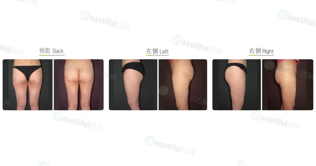 臀部抽脂(女)效果图,案例前后对比照片