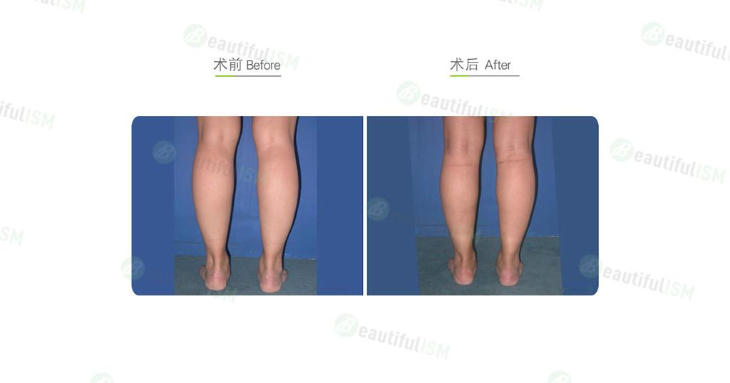 小腿吸脂效果图,案例前后对比照片
