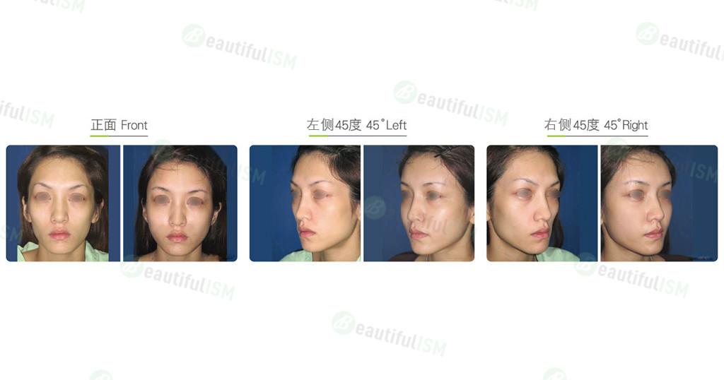 自体脂肪丰面颊(女)效果图,案例前后对比照片