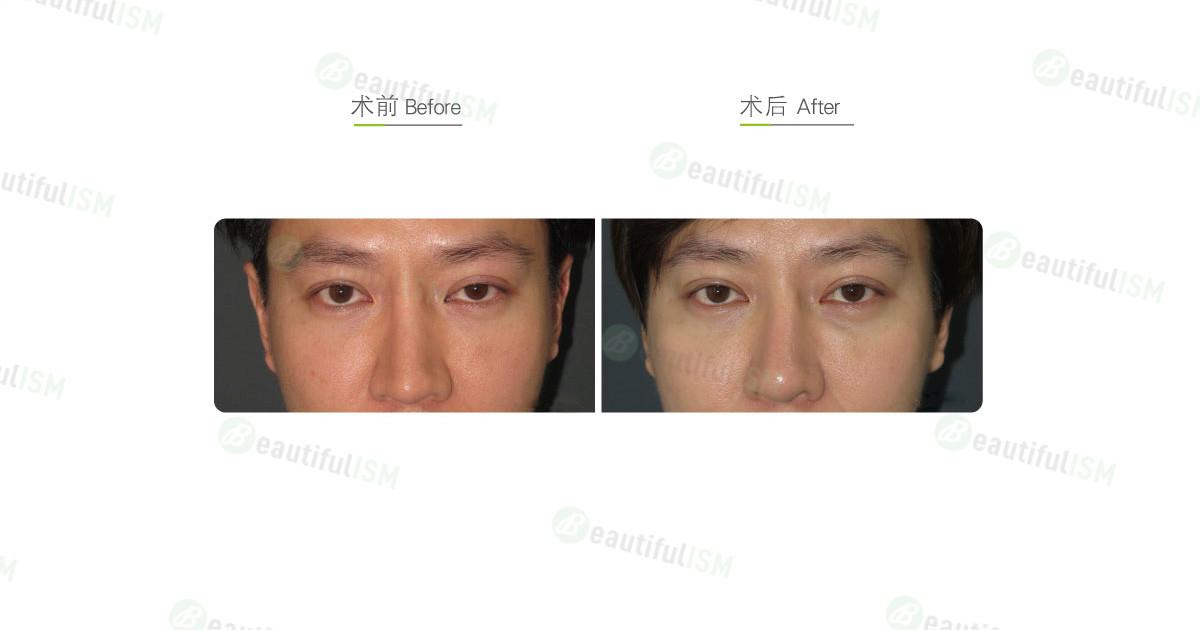 提眼肌整形(男)效果图,案例前后对比照片