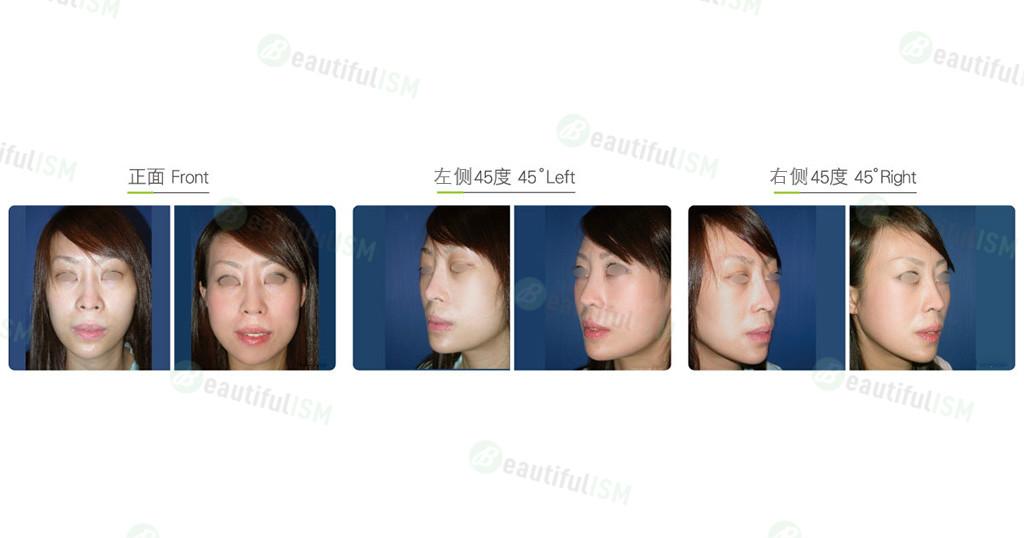自体脂肪移植-太阳穴/双脸颊脂肪填充(女)效果图,案例前后对比照片