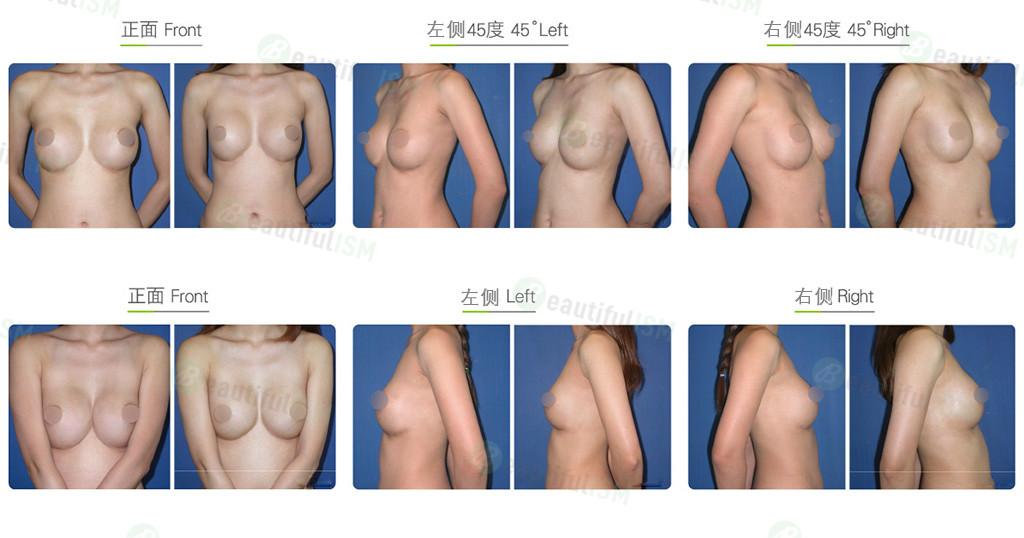 自体脂肪移植-丰胸后矫正效果图,案例前后对比照片