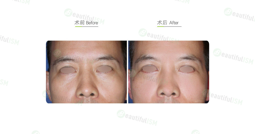 自体脂肪移植-脂肪填补泪沟凹陷(男)效果图,案例前后对比照片
