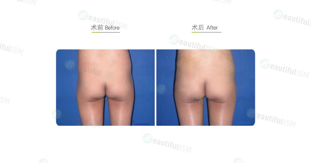 自体脂肪移植-丰臀(女)效果图,案例前后对比照片