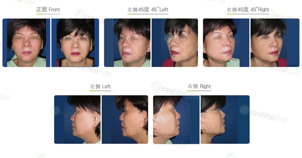 双下巴颈部吸脂(女)效果图,案例前后对比照片