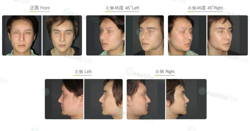 双下巴颈部吸脂(男)效果图,案例前后对比照片