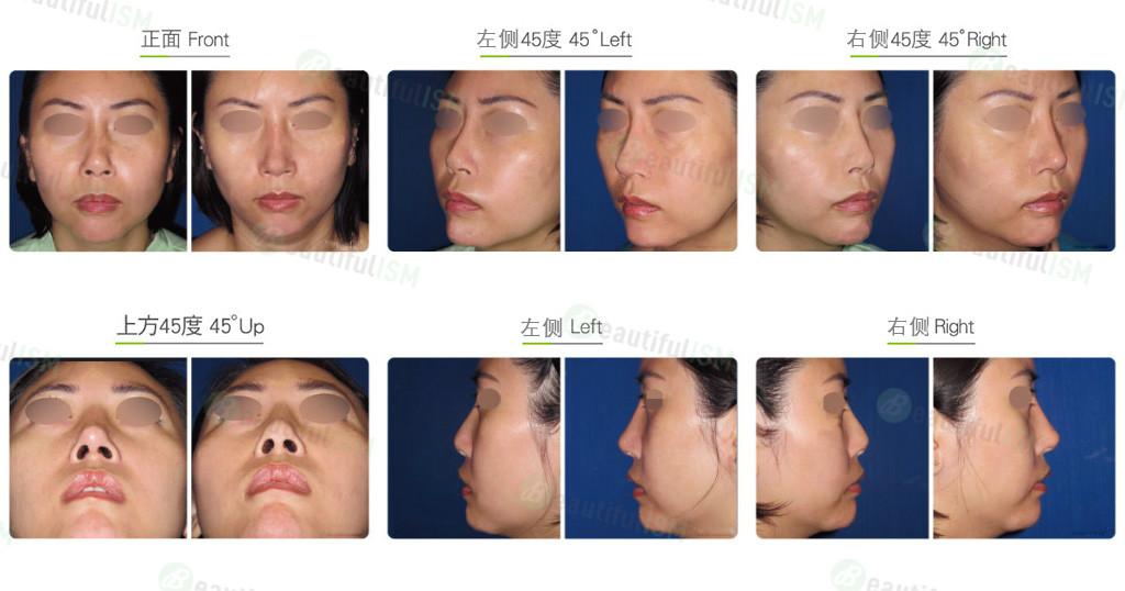 韩式隆鼻修复+鼻骨缩减(女)效果图,案例前后对比照片