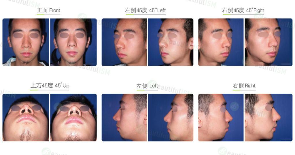 韩式隆鼻修复+补鼻肉(男)效果图,案例前后对比照片