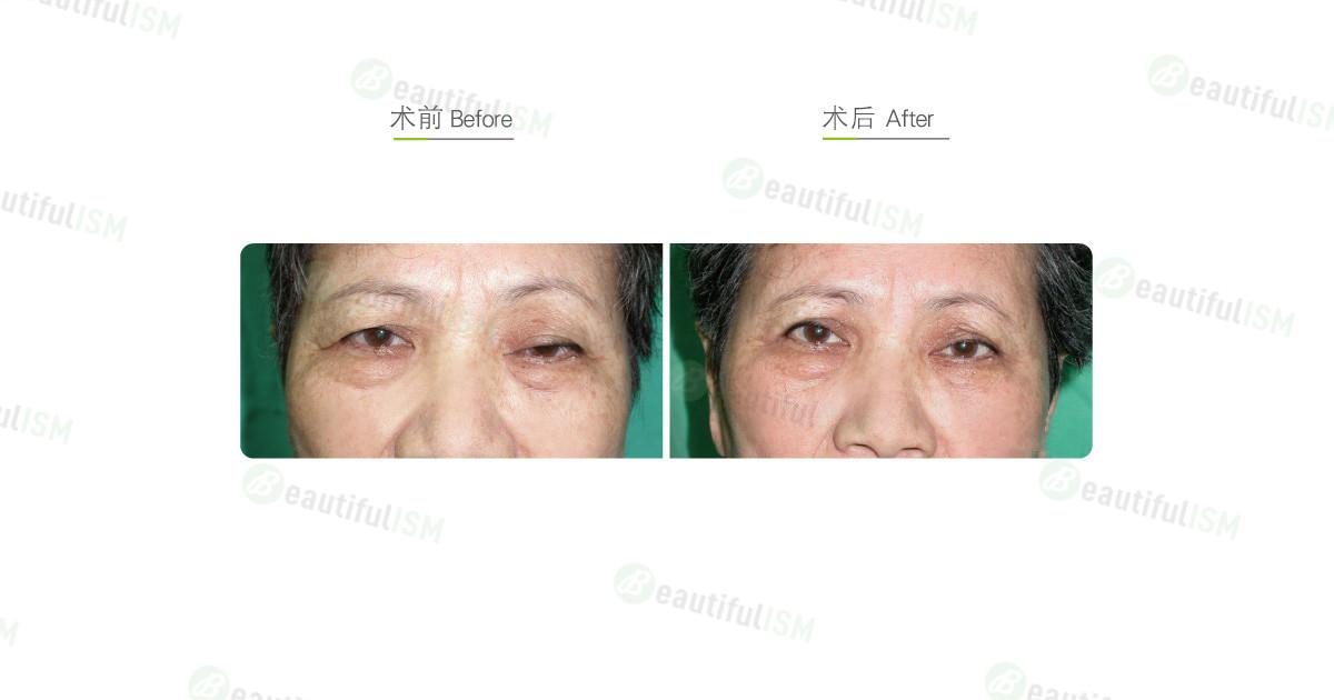 提眼肌矫正-外伤性垂睑手术效果图,案例前后对比照片