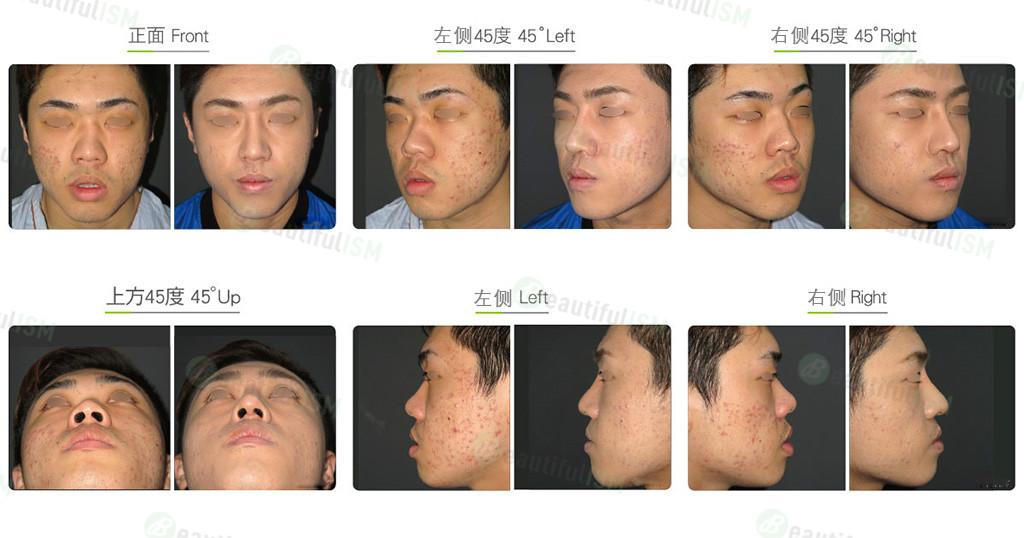 鼻骨缩减+韩式隆鼻+鼻翼缩小(男)效果图,案例前后对比照片
