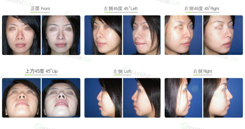 朝天鼻整形+韩式隆鼻(女)效果图,案例前后对比照片