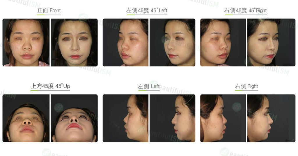 朝天鼻整形+韩式隆鼻+鼻翼缩小(女)效果图,案例前后对比照片