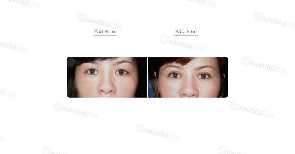 自体脂肪填充眼窝凹陷+割双眼皮(女)效果图,案例前后对比照片